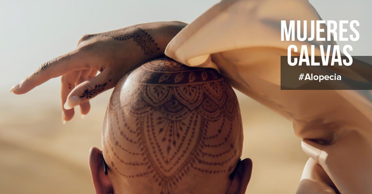 Alopecia - mujeres calvas